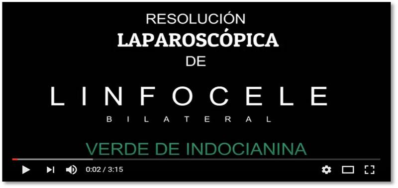 Resolución Laparoscópica de Linfocele